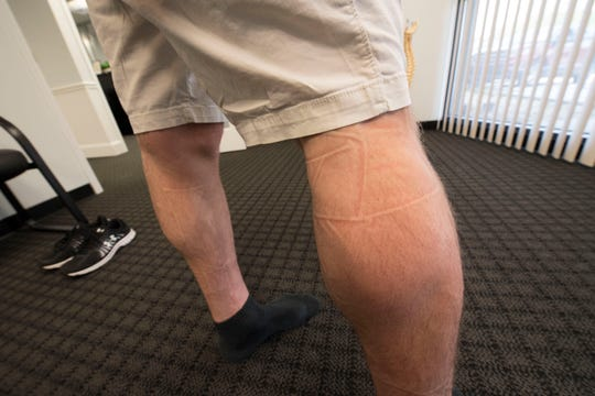 After 30 minutes of compression therapy, it's common to see impression lines on the legs, arms or hips.