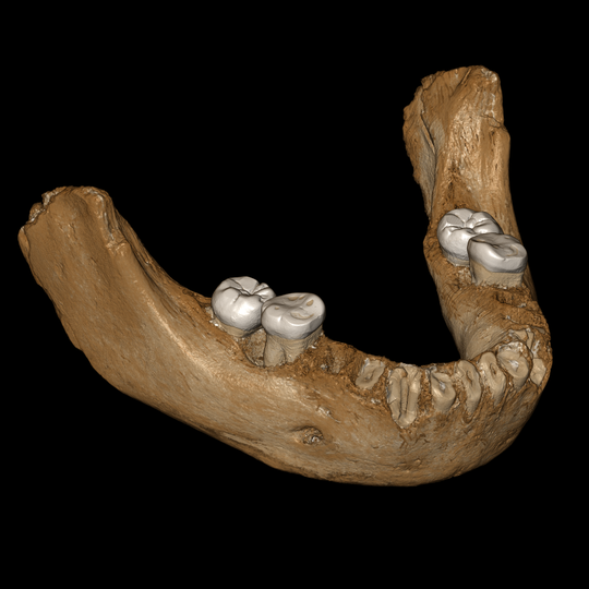 A virtual reconstruction of the jawbone of the Denisovan fossil discovered in Tibet.