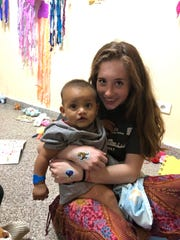 Hailey Longstreet of Westfield Attends Operation Smile Medical Mission in Paraguay