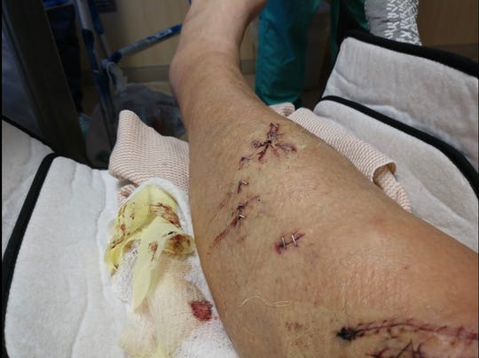 Paul Kelly's leg after surgeons stitched and stapled him up after a shark bit him.