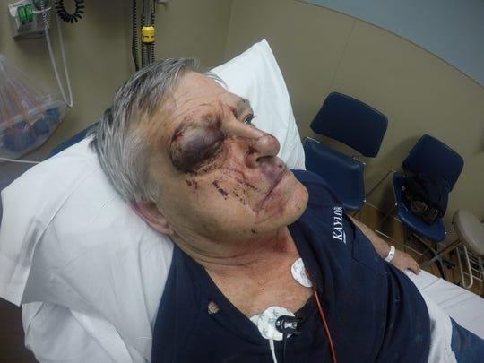 John Robert Kaylor injuries sustained in alleged assault by Elmore Mayor Matt Damschroder.
