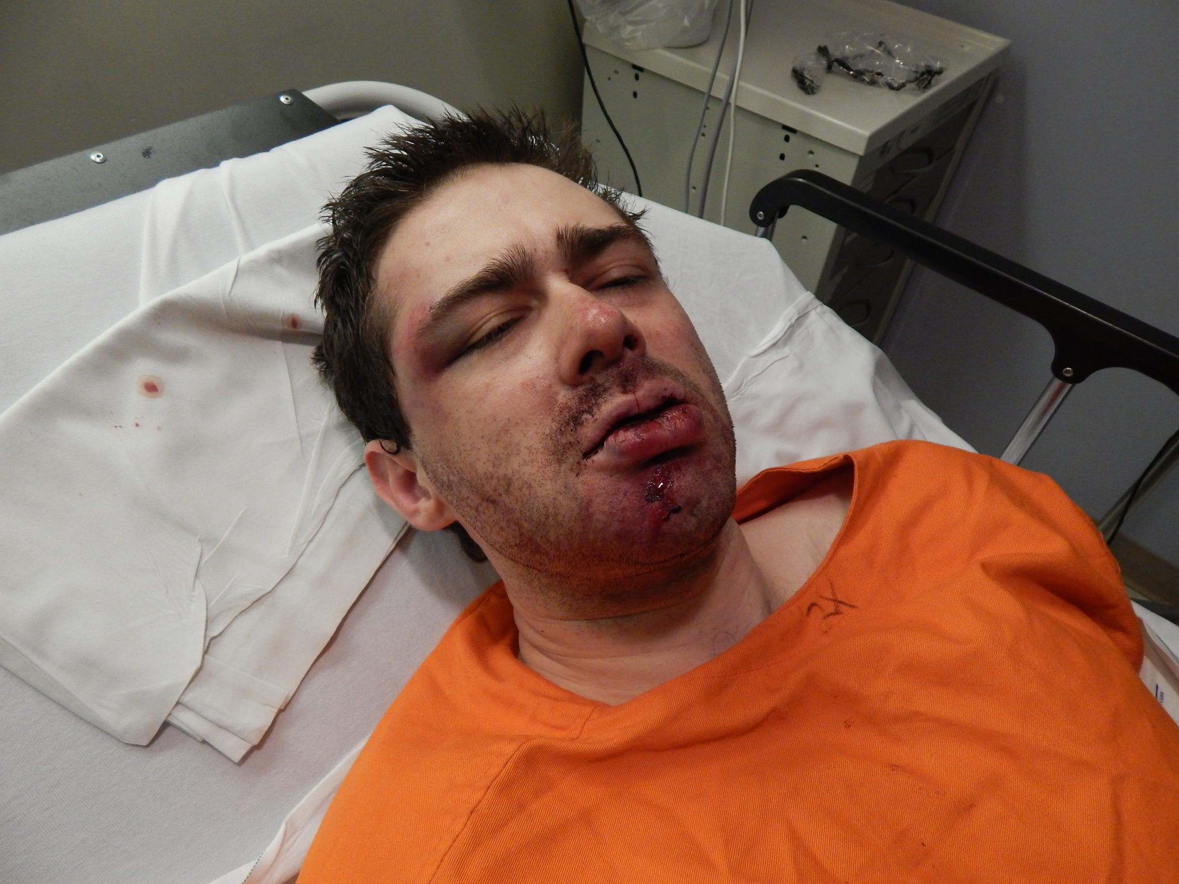 Casey Pigge was treated at Adena Pike Medical Center after he and fellow inmate Greg Reinke stabbed a correctional officer more than 30 times on Feb. 20, 2018, at Southern Ohio Correctional Facility.