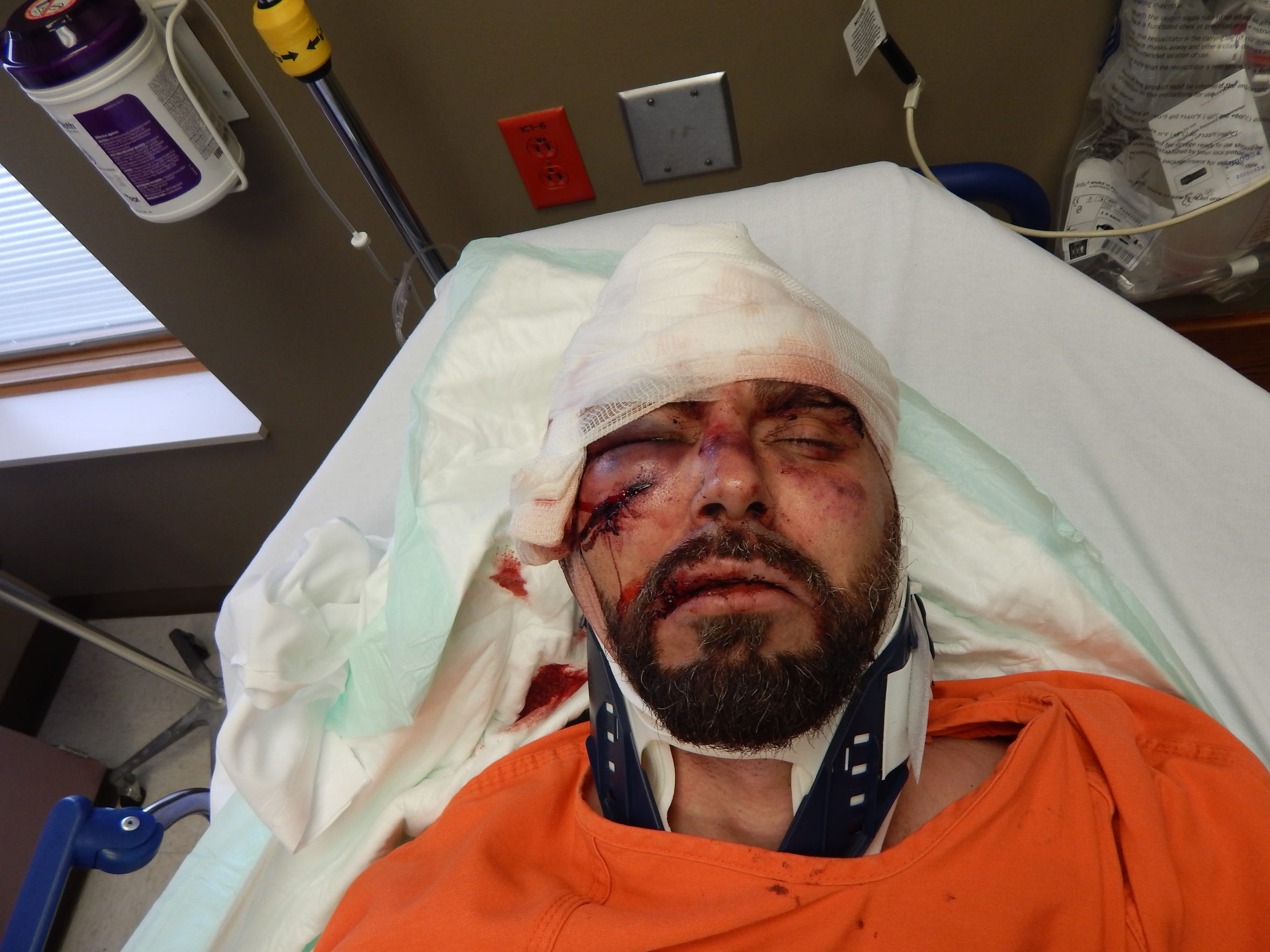 Greg Reinke was treated at Adena Pike Medical Center after he and fellow inmate Casey Pigge stabbed a correctional officer more than 30 times on Feb. 20, 2018, at Southern Ohio Correctional Facility.