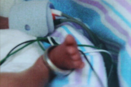 A family photo of Tess Ranieri, who was born at 25 weeks, with her father's wedding ring around her foot. Ten years later, her mother, Patti Ranieri, volunteers at Maria's Hope, a program helping new moms of micro preemies to navigate an emotional, scary time at Maria Ferari Children's Hospital.