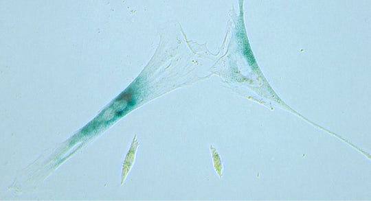 This microscope photo shows shows two senescent human fibroblast cells, above, next to normal ones in Minneapolis, Minn.