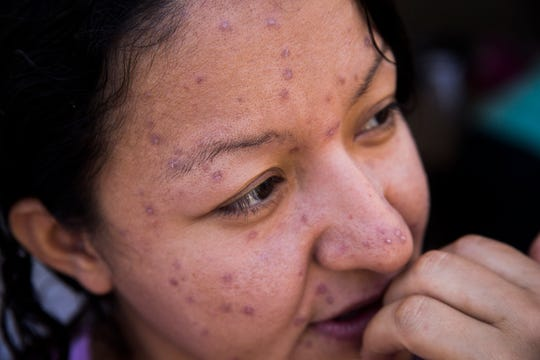 Maricela Lopez, a migrant who was returned to Mexico under the Migrant Protection Protocol asylum policy was not allowed into the U.S. for her court hearing after U.S. agents noticed she had symptoms of chickenpox, still visible in this photo.