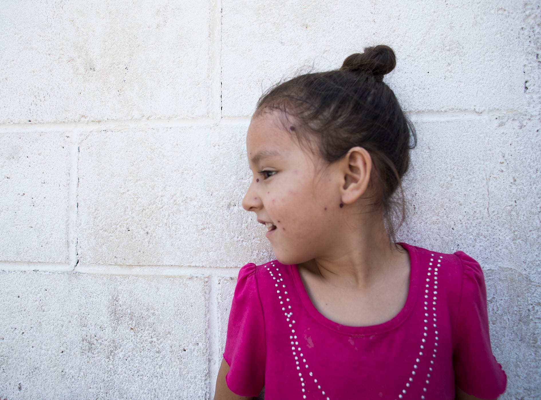 Maritza Salazar, 6, was infected with chickenpox at the Casa de Ayuda Alfa y Omega migrant shelter. Salazar was returned to Mexico with mother, Maricela Lopez, under the Migrant Protection Protocol asylum policy.