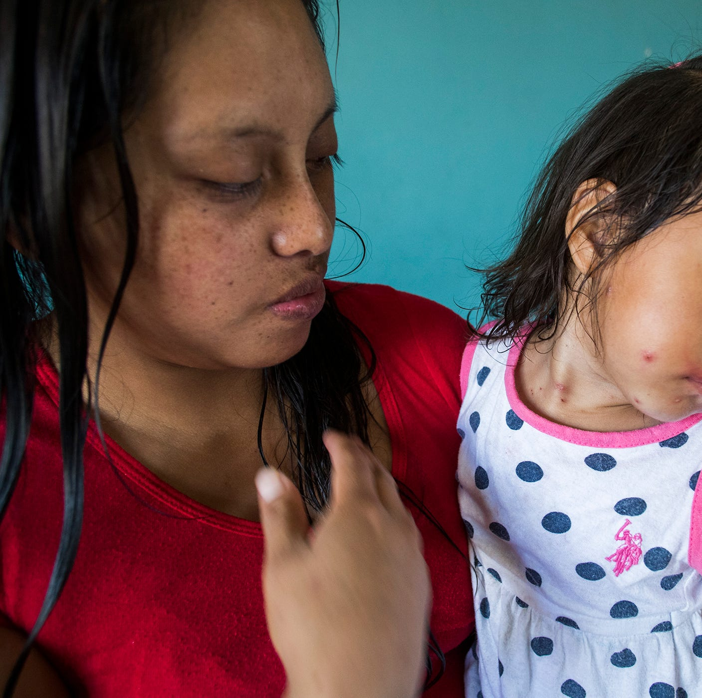 Asylum seekers awaiting court dates in Mexicali face another challenge: Chickenpox