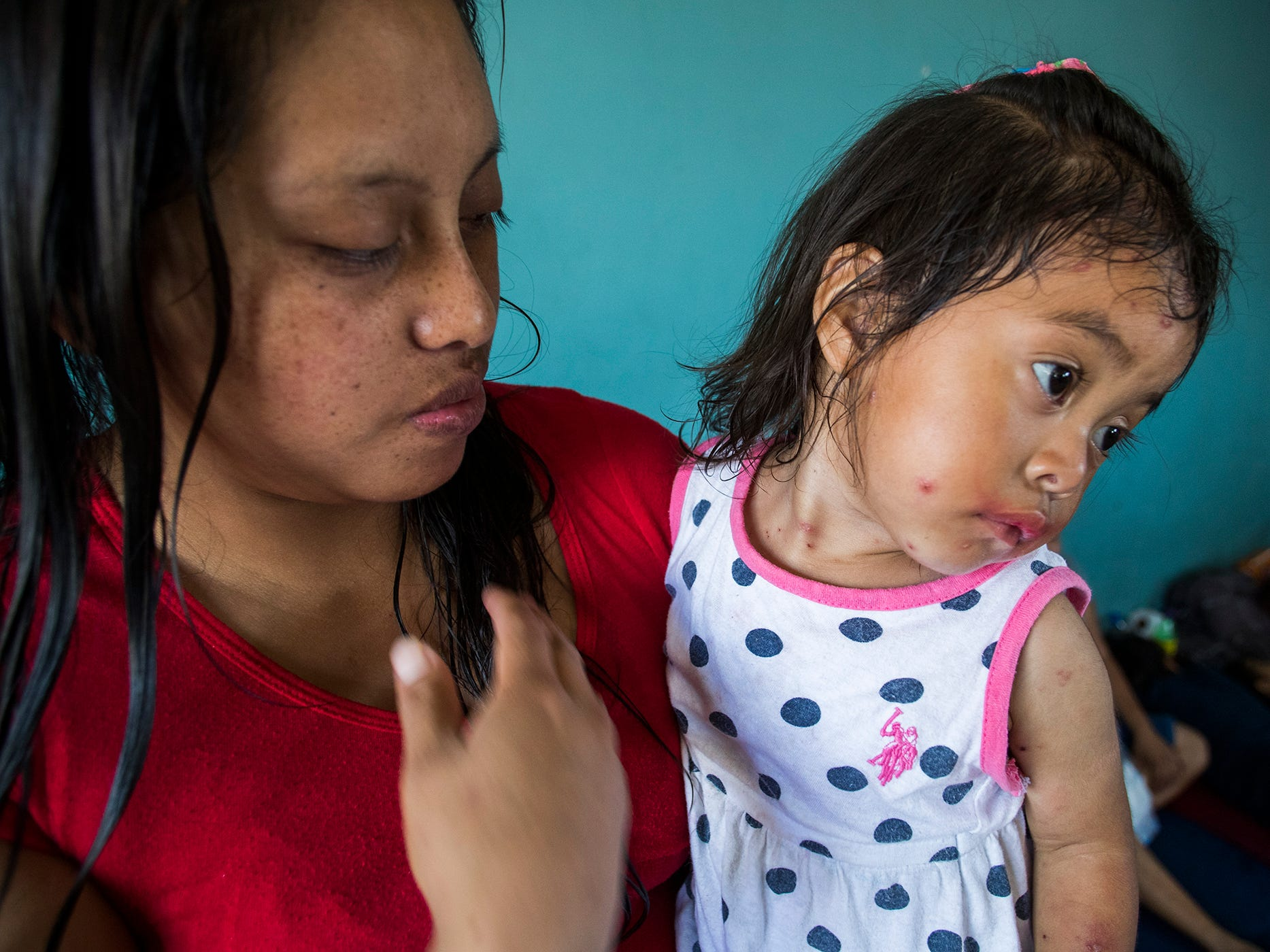 Mirsa Garcia Ramos, a migrant who was returned to Mexico under the Migrant Protection Protocol asylum holds her daughter Briseba Aracely Camillo Garcia, 2, who shows symptoms of being infected by the chickenpox virus at a migrant shelter in Mexicali on May 14, 2019.