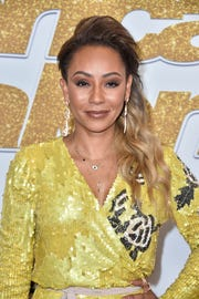 Spice Girl Mel B details medical emergency: 'I went blind in my right eye'
