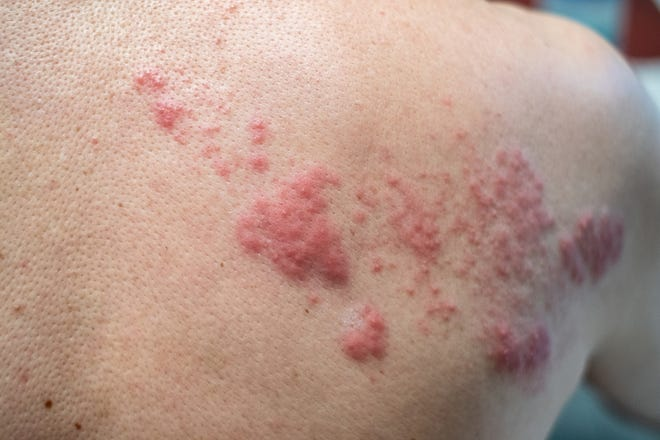 Shingles, caused by the varicella-zoster virus, causes a painful skin rash of blisters on the body, as seen here. When the blisters are wet, the illness is contagious, but when they dry out and scab over, the contagious period has ended, said Las Cruces doctor Obi Okoli.