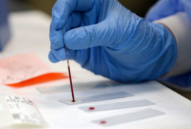 A medical technologist works on running blood samples.