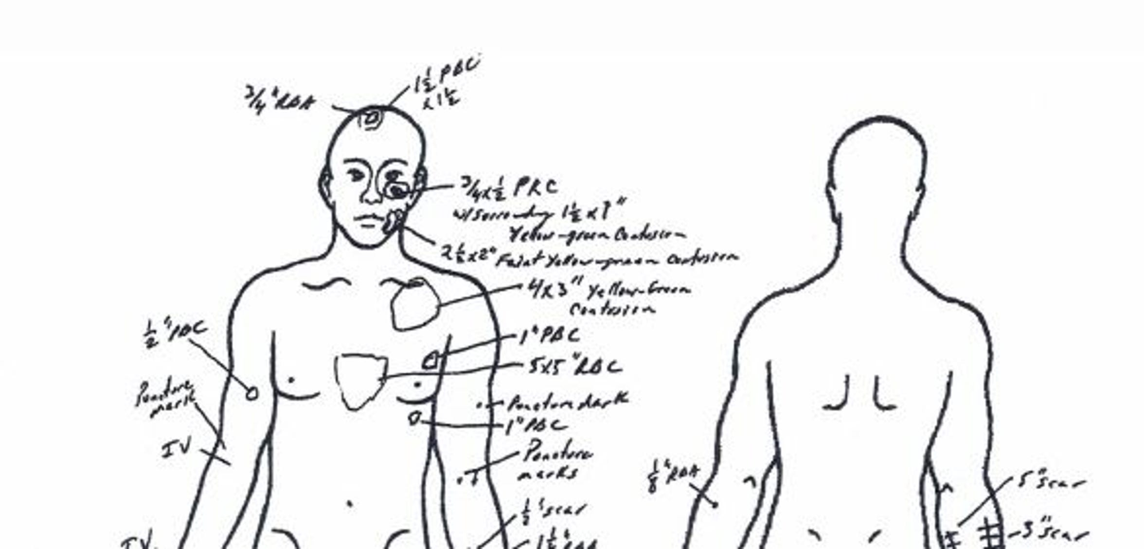 Earl Wayne Johnson's autopsy report shows multiple injuries to his head and upper body.