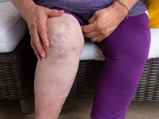 Leticia's surgery scar