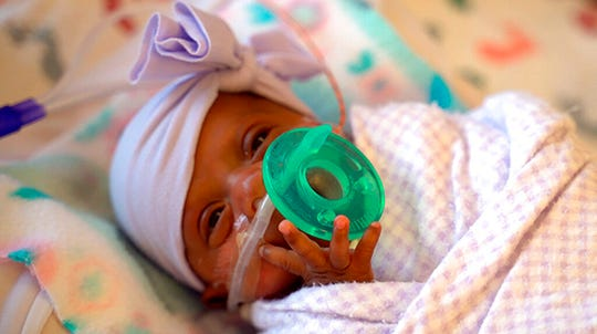 This March, 2019 photo provided by Sharp HealthCare in San Diego shows a baby named Saybie. Sharp Mary Birch Hospital for Women & Newborns said in a statement Wednesday, May 29, 2019, that Saybie, born at 23 weeks and three days, is believed to be the world's tiniest surviving baby, who weighed just 245 grams (about 8.6 ounces) before she was discharged as a healthy infant.
