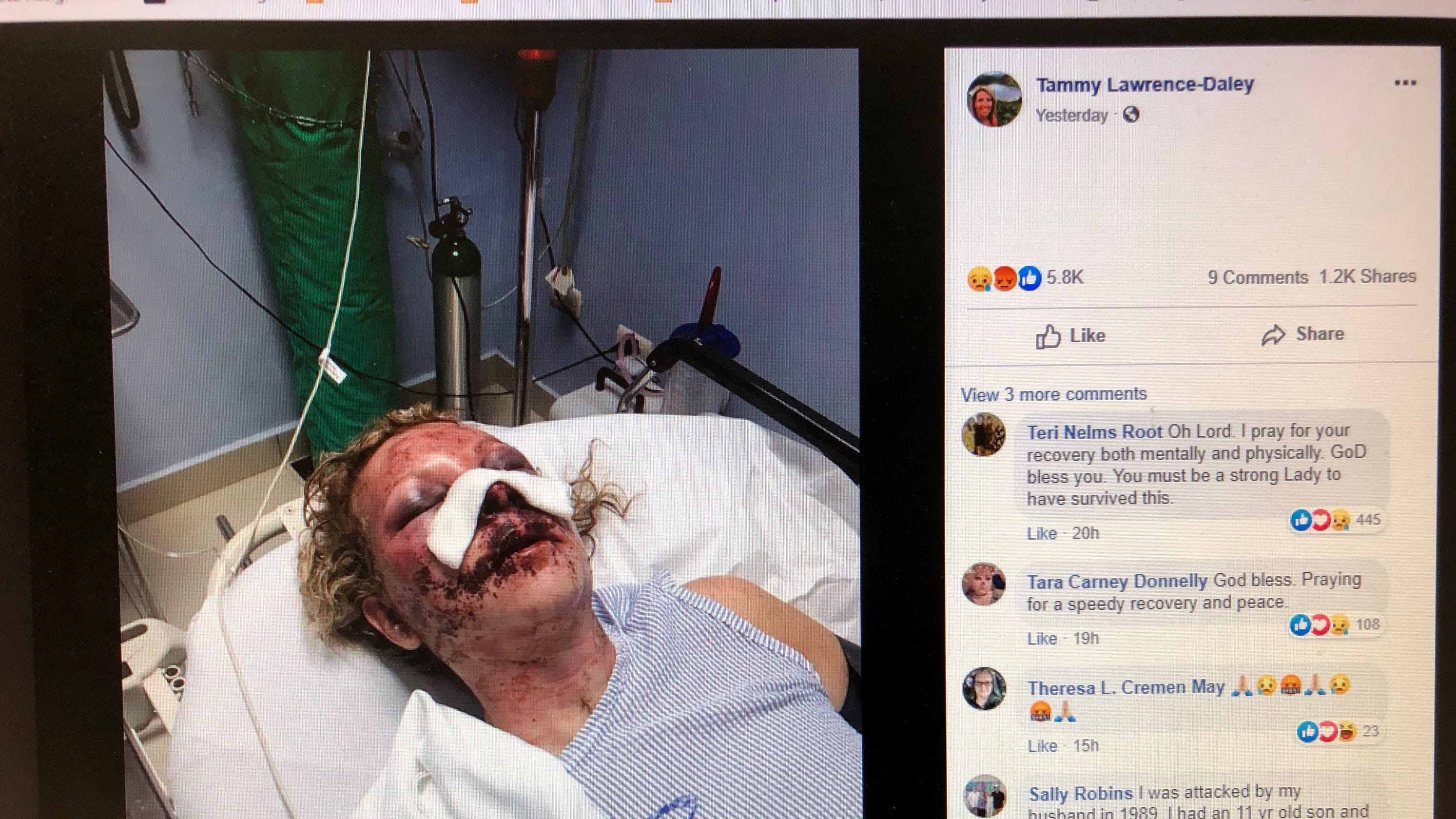 Wilmington woman recounts attack in viral Facebook post