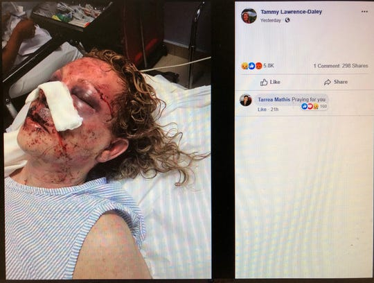 Tammy Lawrence-Daley shared this photo on Facebook as she recounted an attack that she says occurred while on a January vacation to the Dominican Republic.