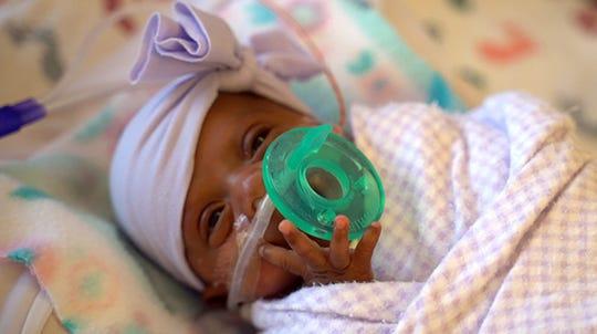 """Fotografía cedida por el Hospital Sharp Mary Birch de San Diego (California) donde aparece """"Saybie"""", una niña nacida a las 23 semanas y tres días de gestación pesando apenas 245 gramos."""