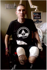 Perry Belden had portions of both legs and his left hand amputated due to severe infection and dehydration he suffered while in the custody of San Bernardino County Sheriff's Department in 2018.