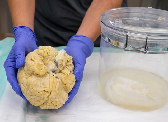 Banner pathology tech Aryck Russell holds a donated brain.