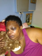 Bonita Williams of York City suffered a concussion, whiplash and other injuries after being head-butted by a mentally ill patient at York Hospital on May 29, 2019. Williams was at the hospital because her adult daughter was undergoing surgery.
