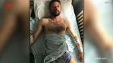 A hiker is lucky to be alive after a vicious bear attack left him wounded but he was able to fend off the bear by punching it in the eye. Veuer's Mercer Morrison has the story.