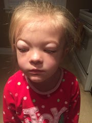 Charlie's swollen eyelids were the first sign of what would be diagnosed as Nephrotic Syndrome and F.S.G.S., a rare kidney disorder.