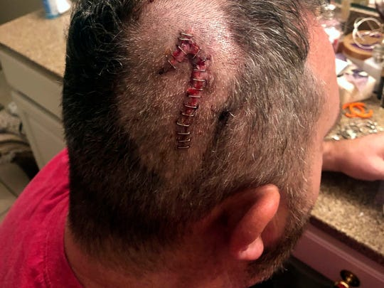 A closed wound on B.K. Hardin's head after he was struck by what he thinks was a hammer Nov. 17, 2018.