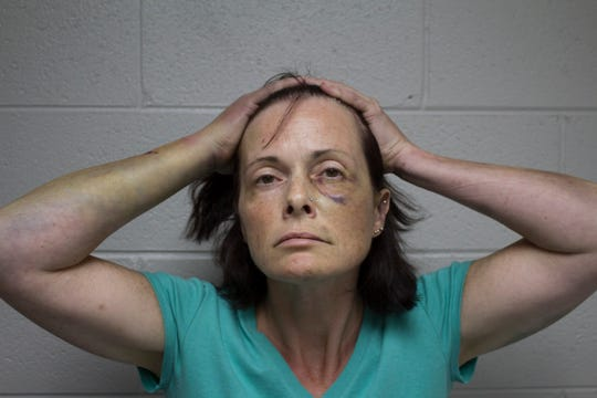 Tina Talbot's injuries are photographed on Sept. 14, 2018, the day she was arrested in the fatal shooting of her husband, Milosz Szczepanowicz. This Waterford Police photo was provided to the Free Press by her friend, Janene Staley.