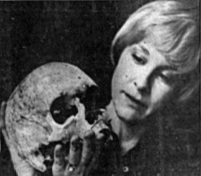 The reputed skull of Patty Cannon was loaned to the Smithsonian.