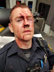 Fraternal Order of Police President Sgt. Dan Hils posted this picture of a bloodied officer injured in an incident at the Montana Avenue YMCA in Westwood.