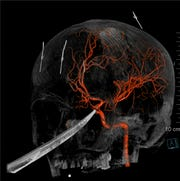 """This 3D computer graphic model made from X-Ray imagery by The University of Kansas Health System shows how a tip of the knife stopped right on and was pressed against the carotid artery as the X-Ray image shows the skull of Eli Gregg. The 15-year-old Kansas boy is recovering days after doctors removed a 10"""" knife that impaled his face when he fell while playing."""