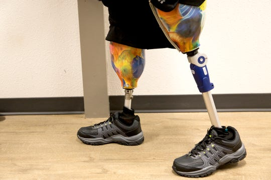 Randy Geer is fitted for prosthetics at Hanger Clinic: Prosthetics and Orthotics in Salem on June 10, 2019. Geer lost both of his legs to diabetes and complications from an infection.
