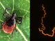 High resolution fluorescently tagged image of the bacteria B. burgdorferi that causes Lyme disease (right).