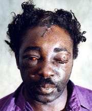 Larry Milton had 22 staples closing the wounds on his head. He says Des Moines police beat, kicked and choked him in December 1991.