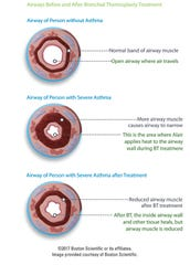 Airways before and after bronchial thermoplasty treatment.