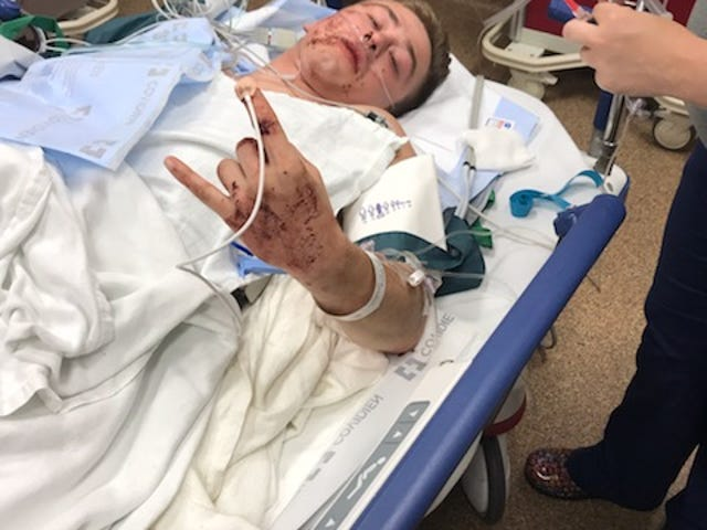 Kelvin Yde receives medical attention Wednesday evening after a fiery crash on I-94 left him seriously injured. He did not suffer any burns, his father, Kevin Yde, said, because strangers pulled him from his car to safety.
