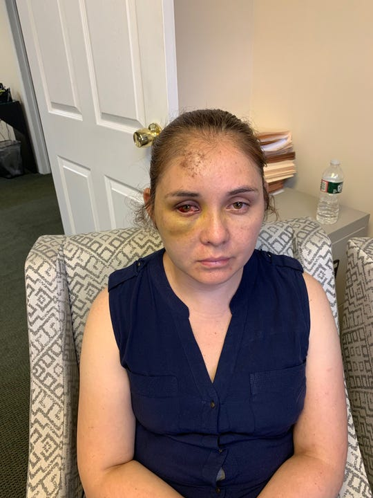 Passaic's Beronica Ruiz on Monday five days after she was attacked by her son's bully, her lawyer alleges.