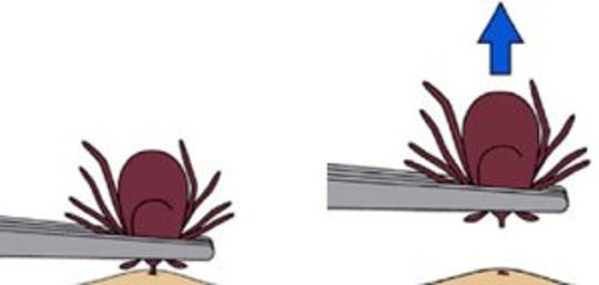 Remove an embedded tick as soon as possible by grasping it as close to the skin as possible with tweezers and pulling straight out with gentle, even pressure. Do not jerk or twist the tick.