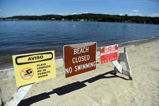 Signs on the closed beach at Hopatcong State Park warn residents of the Harmful Algae Bloom at Lake Hopatcong on Monday, July 1, 2019, in Landing, NJ.