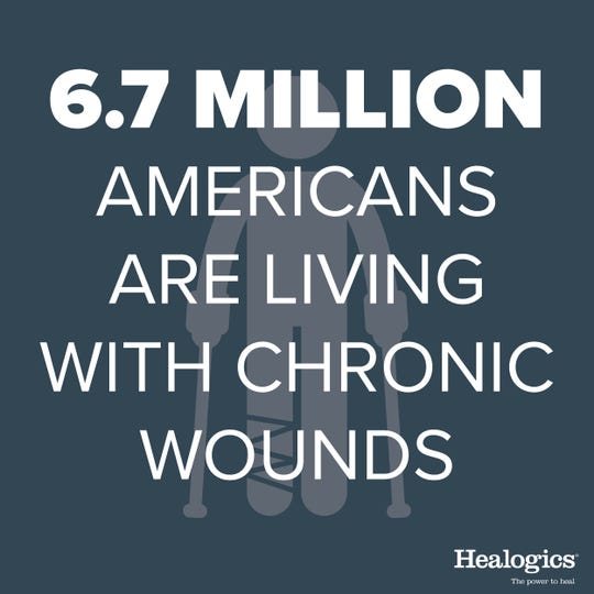 Chronic wounds are common and can be managed with proper treatment.