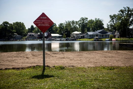 A sign warning visitors at the North Shore at Buckeye Lake to avoid contact with the water due to algae blooms.