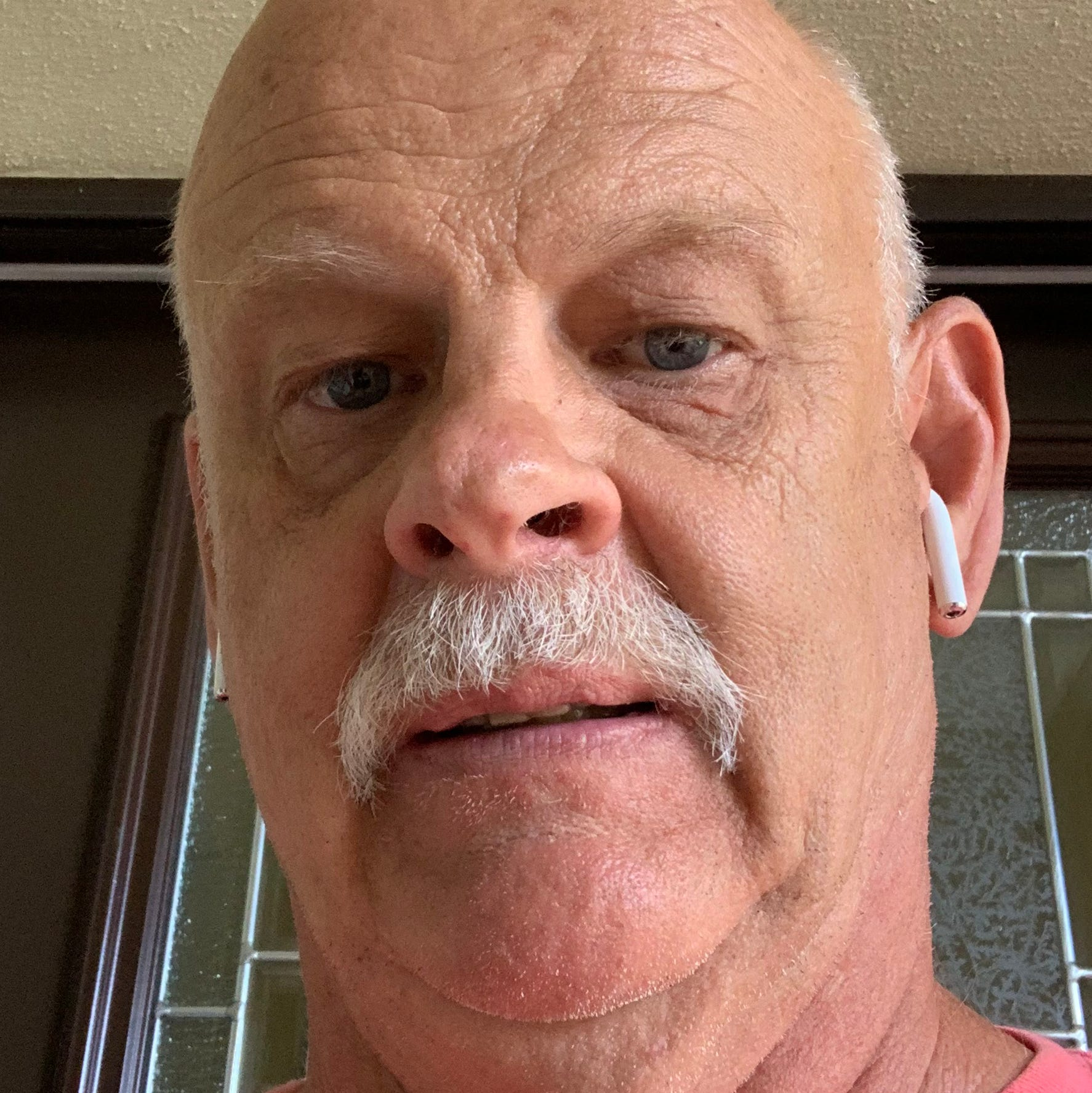 """Philip Frincke of Venice, Florida is the owner of a 2014 Ford Focus. He took this photo on July 8 at home. He said, """"I had more hair before this whole deal started back in 2014."""""""