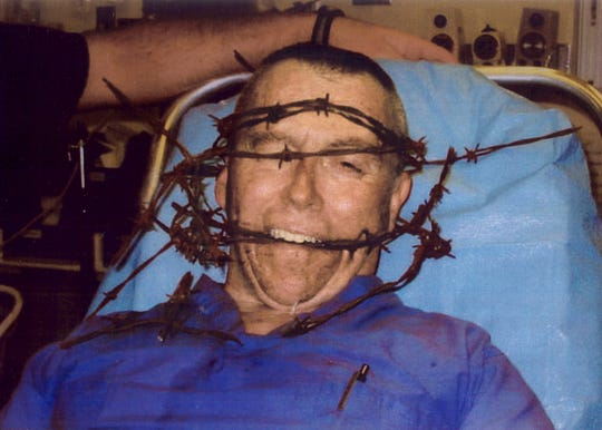 Former Shelby County medical examiner Dr. O. C. Smith wrapped in barbed wire after being discovered by police.