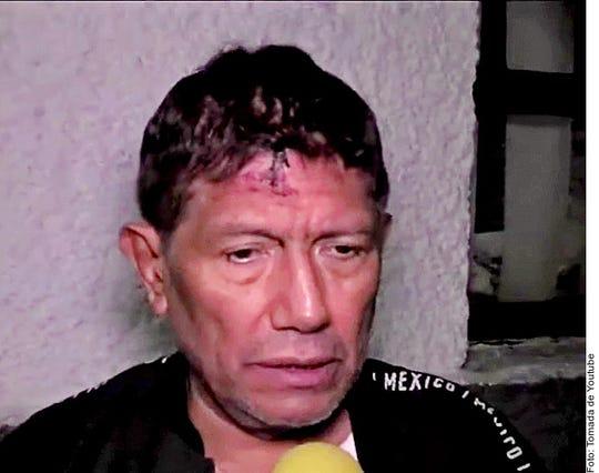 Juan Osorio recibió un golpe en la cabeza tras ser víctima de robo domiciliario.