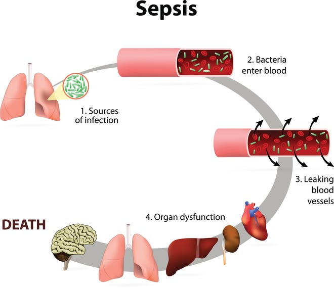 Sepsis or septicaemia is a life-threatening illness. Presence of numerous bacteria in the blood, causes the body to respond in organ dysfunction.