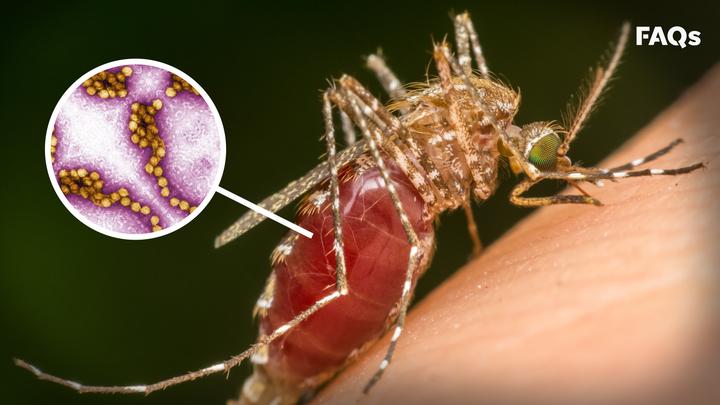 Mosquito season: How to identify symptoms of West Nile Virus