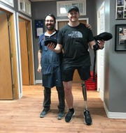 Pictured with prosthetist David Rotter, Matt Branch is now walking with a prosthetic after his leg was amputated due to being shot by a dog on a hunting trip.