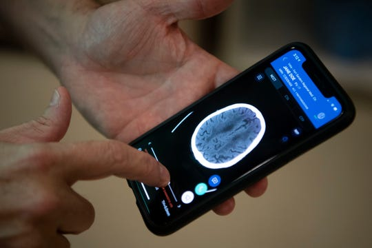 Fort Sanders' Neurointerventional radiologist Keith Woodward, MD, demonstrates the use of his smart phone to read vital stroke patient information at Fort Sanders Regional Medical Center's Comprehensive Stroke Center on Tuesday, July 16, 2019.