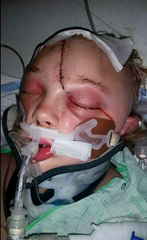 Katy Davis suffered major head injuries following a car accident in 2015.